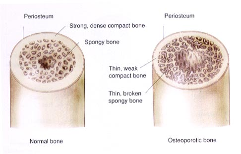 هشاشة العظام (Osteoporosis) Osteoporosis-illustrated